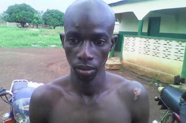 Abus policiers à Guérin-Kouka : Agriga Ibrahim, un jeune zémidjan, sauvagement tabassé et couvert de blessures par la police…
