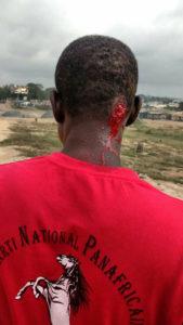 Marche du PNP : Tirs de grenades lacrymogènes et dispersion des premiers manifestants