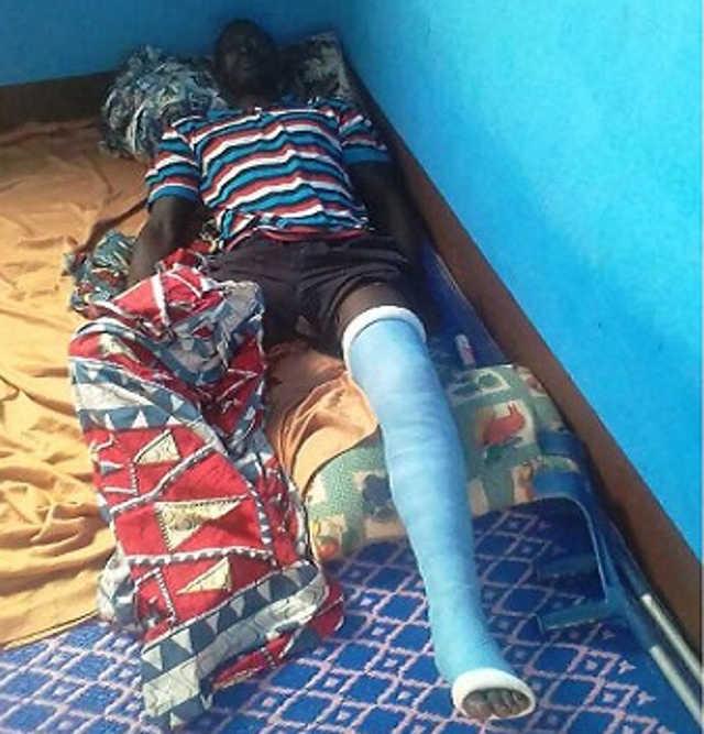 Togo, Barbarie gratuite des militaires : Ouro-Akpo Kamalodine, habitant de Bafilo, battu, pieds cassés, détenu illégalement à la prison de Kara. Il raconte son calvaire.