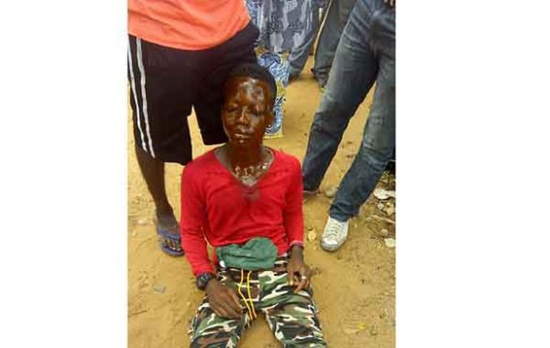 La manifestation spontanée devant la CENI ce lundi à Lomé, aurait fait une victime