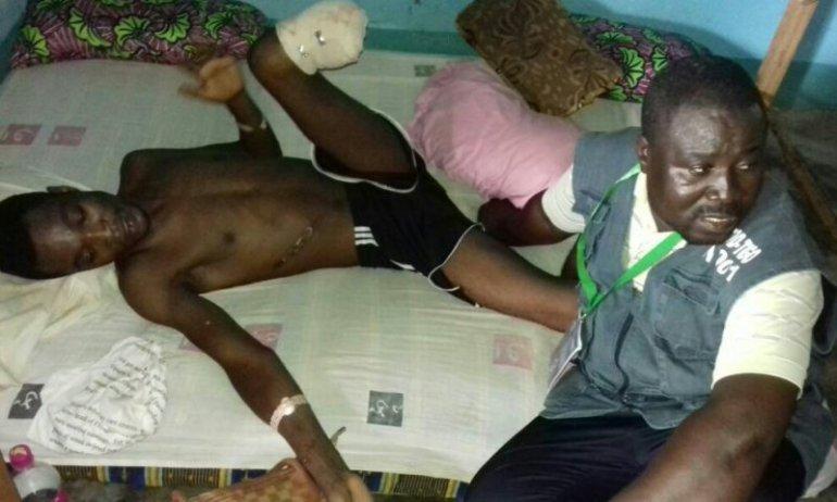 Manifestations à Mango : Victime de violences physiques, ce jeune togolais a perdu une jambe