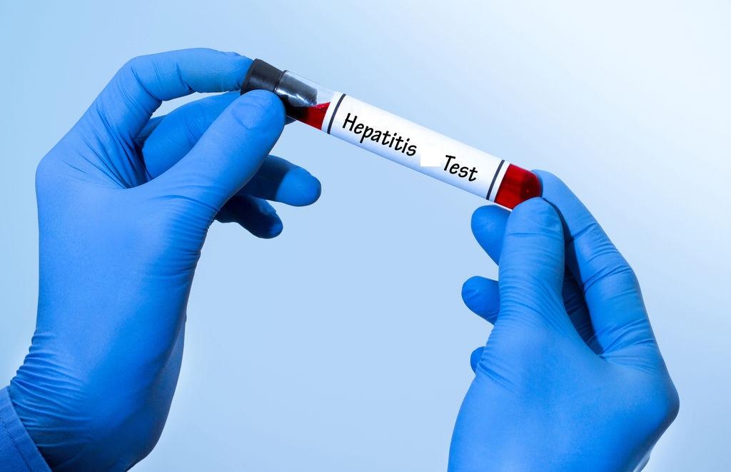 Campagne de dépistage et de vaccination contre l'hépatite B à la clinique Biasa de Lomé