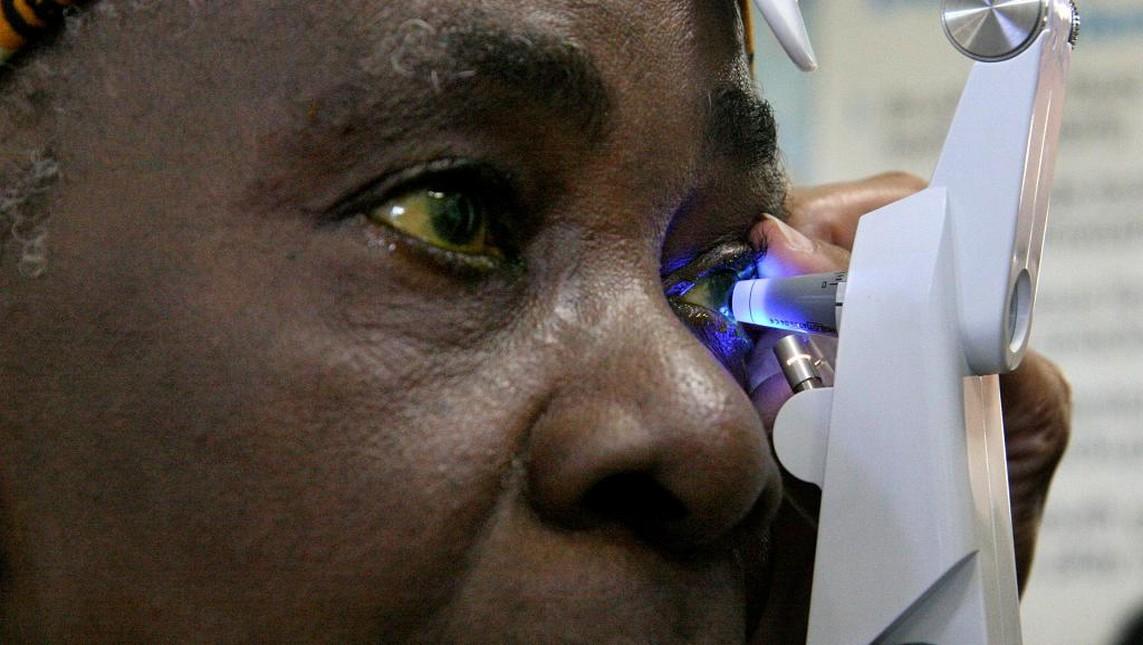 Togo / 200 patients ont été opérés de la cataracte cette semaine dans le Kpendjal