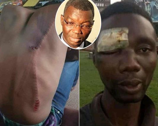 victimes de la violence des policiers tde yark couvre-feu