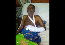 Fiogbédji Paulin blesse par balle police tsevie togo