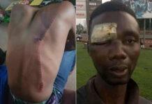 victimes de la violence des policiers togolais couvre-feu